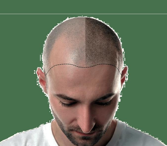scalp micropigmentation SMP